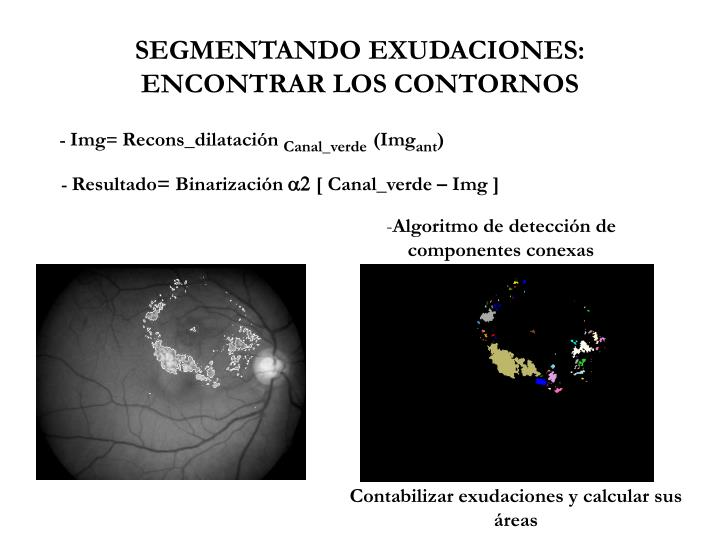 SEGMENTANDO EXUDACIONES: ENCONTRAR LOS CONTORNOS