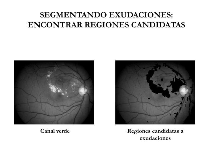 SEGMENTANDO EXUDACIONES: ENCONTRAR REGIONES CANDIDATAS