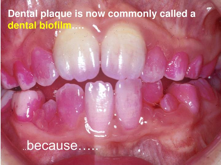 Dental plaque is now commonly called a