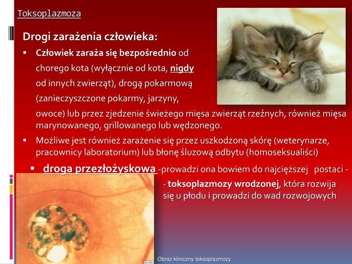 Toksoplazmoza