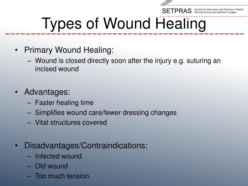 PPT - Wound Healing PowerPoint Presentation - ID:6167824