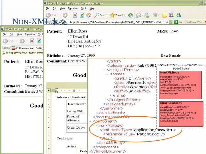 Non-XML