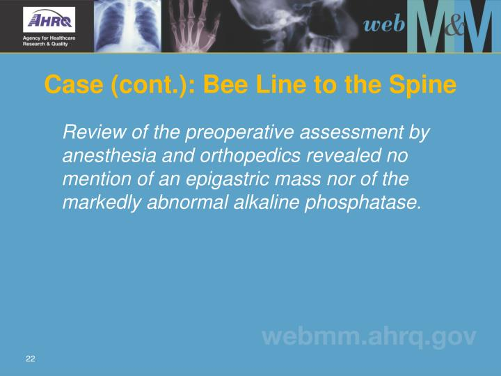 Case (cont.): Bee Line to the Spine