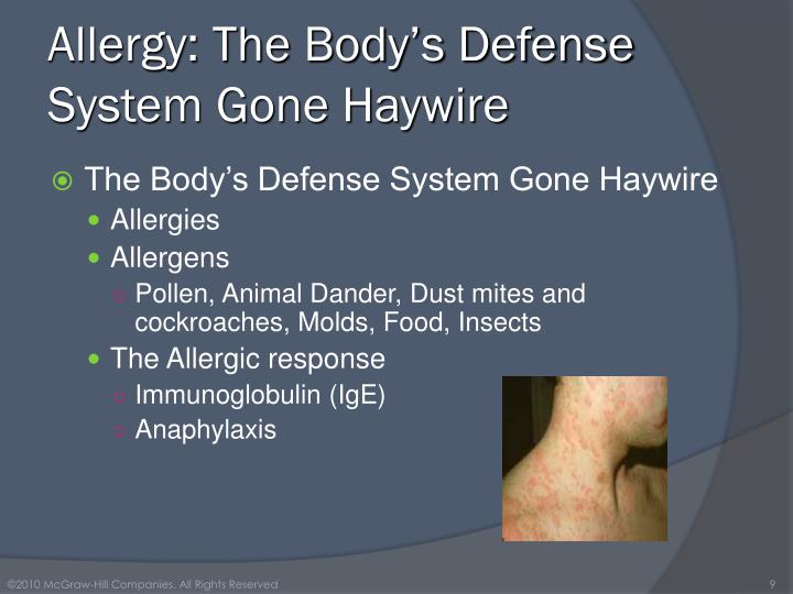 Allergy: The Body's Defense System Gone Haywire