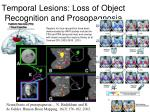 temporal lesions loss of object recognition and prosopagnosia