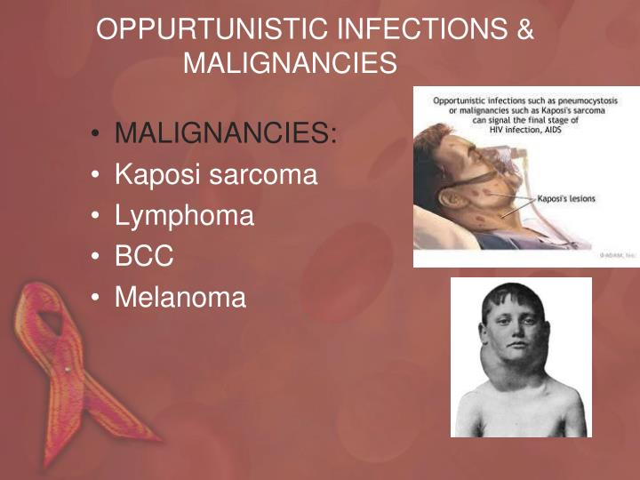 OPPURTUNISTIC INFECTIONS &
