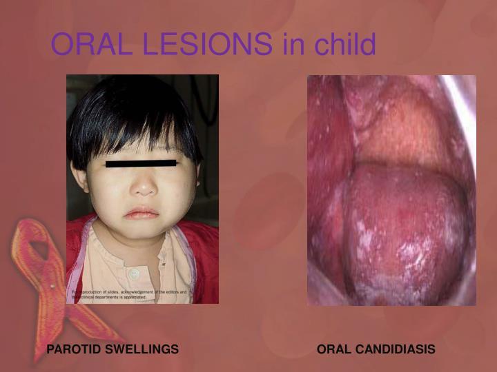 ORAL LESIONS in child