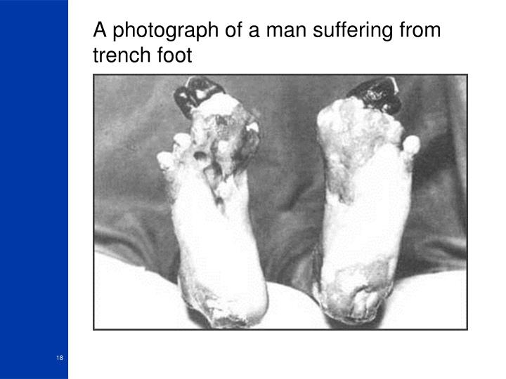 A photograph of a man suffering from trench foot