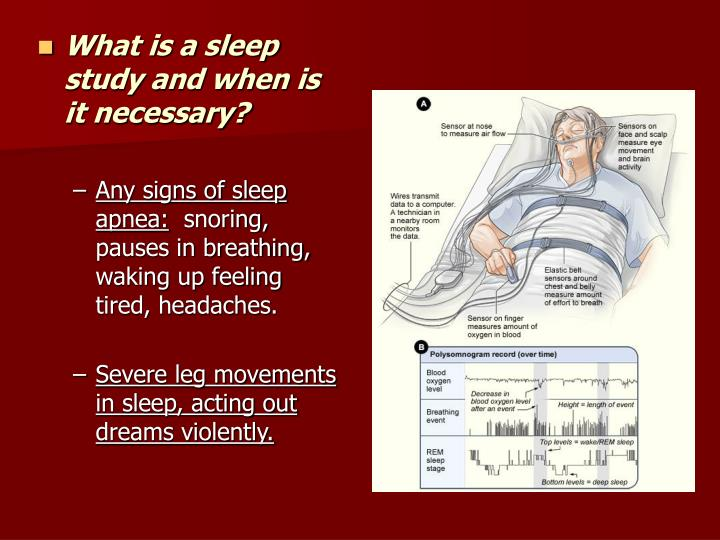 What is a sleep study and when is it necessary?