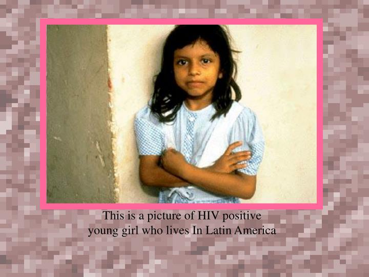 This is a picture of HIV positive young girl who lives