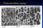 trabecular bone aging