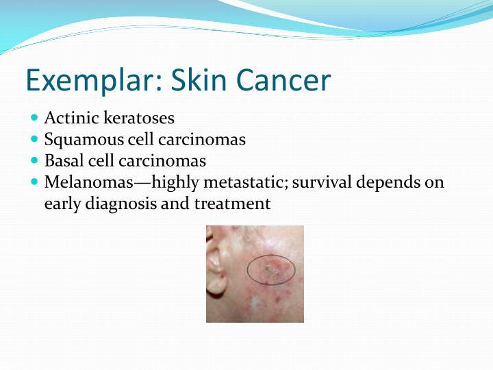 Exemplar: Skin Cancer