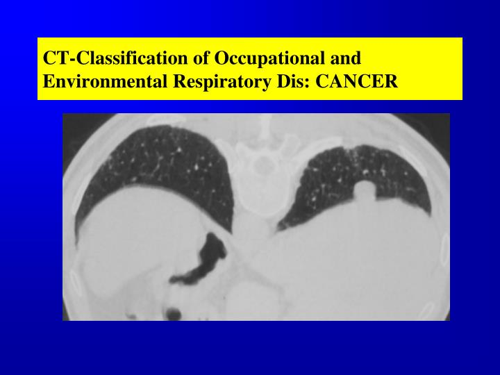CT-Classification of Occupational and Environmental Respiratory Dis: CANCER