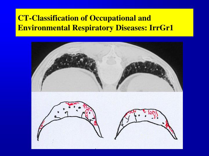 CT-Classification of Occupational and Environmental Respiratory Diseases: IrrGr1