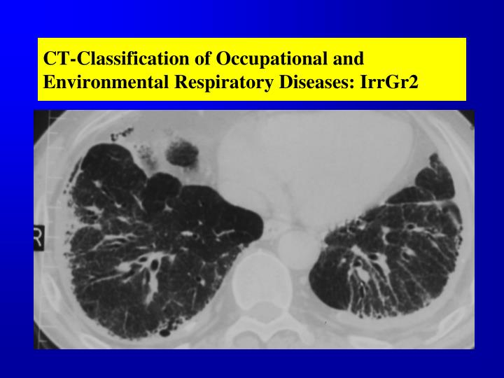 CT-Classification of Occupational and Environmental Respiratory Diseases: IrrGr2