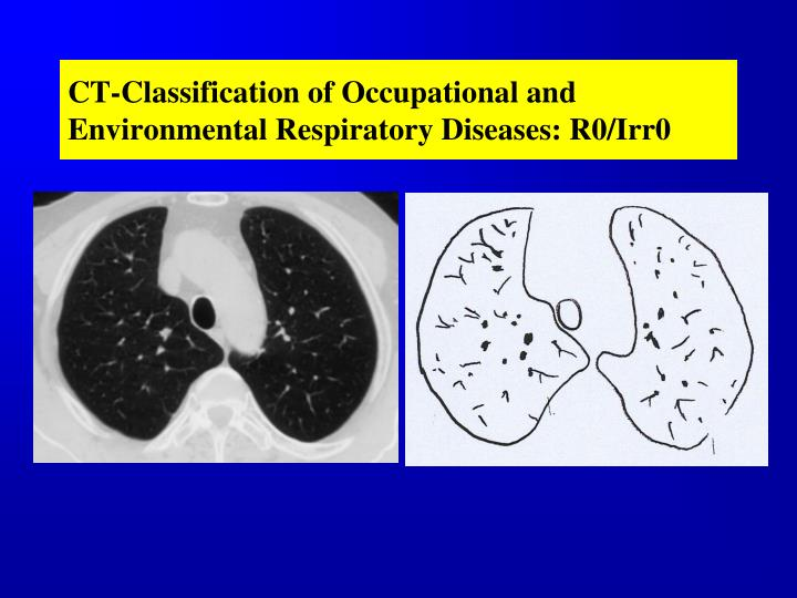 CT-Classification of Occupational and Environmental Respiratory Diseases: R0/Irr0