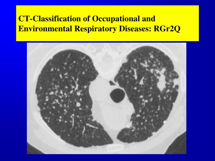 CT-Classification of Occupational and Environmental Respiratory Diseases: RGr2Q
