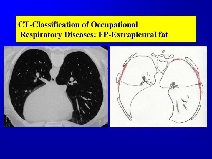 CT-Classification of Occupational