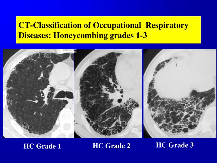 CT-Classification of Occupational  Respiratory Diseases: Honeycombing grades 1-3