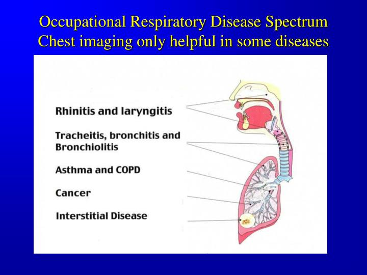 Occupational Respiratory Disease Spectrum Chest imaging only helpful in some diseases