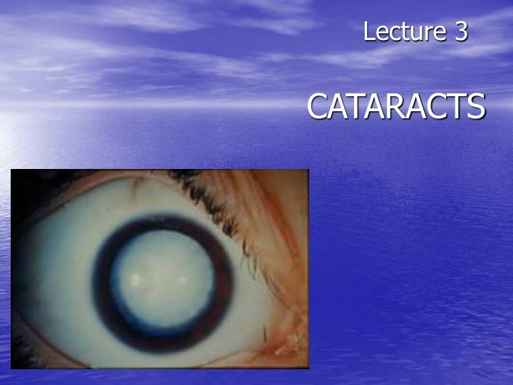 lecture 3 cataracts n.
