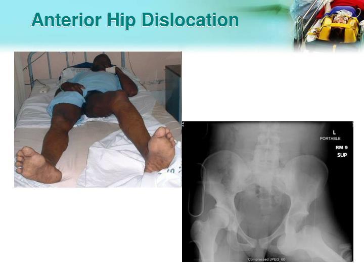 Anterior Hip Dislocation