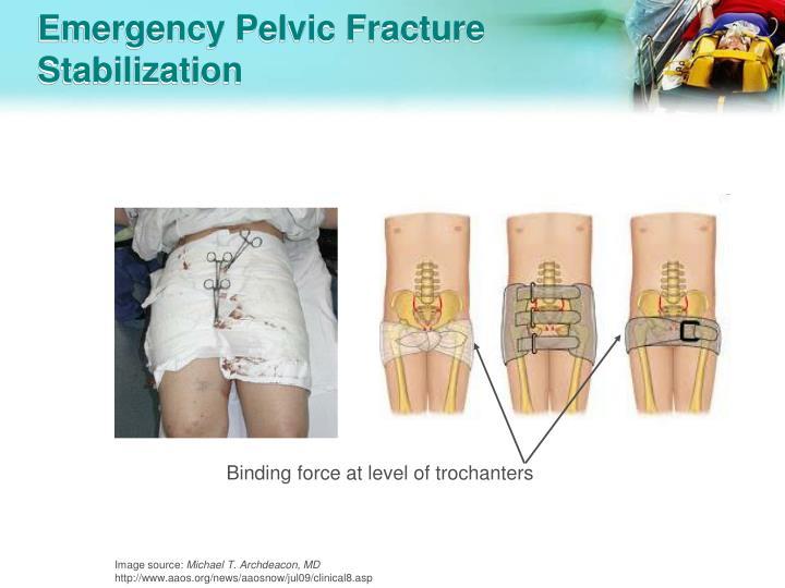 Emergency Pelvic Fracture Stabilization