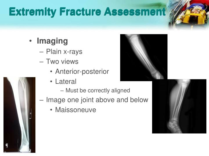 Extremity Fracture Assessment