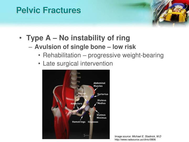 Pelvic Fractures