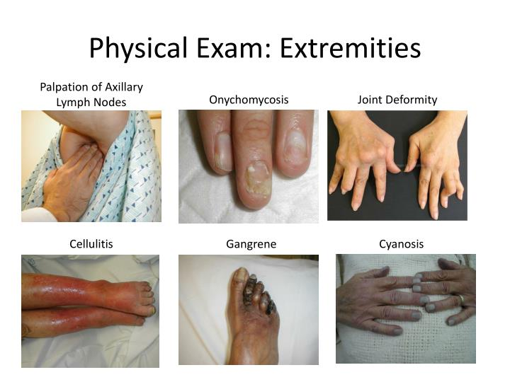 Physical Exam: Extremities