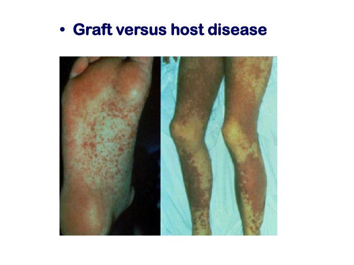 Graft versus host disease