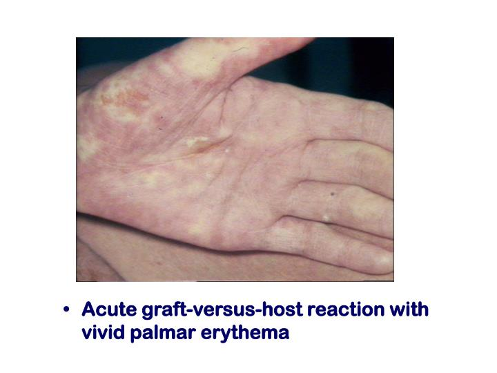 Acute graft-versus-host reaction with vivid palmar erythema