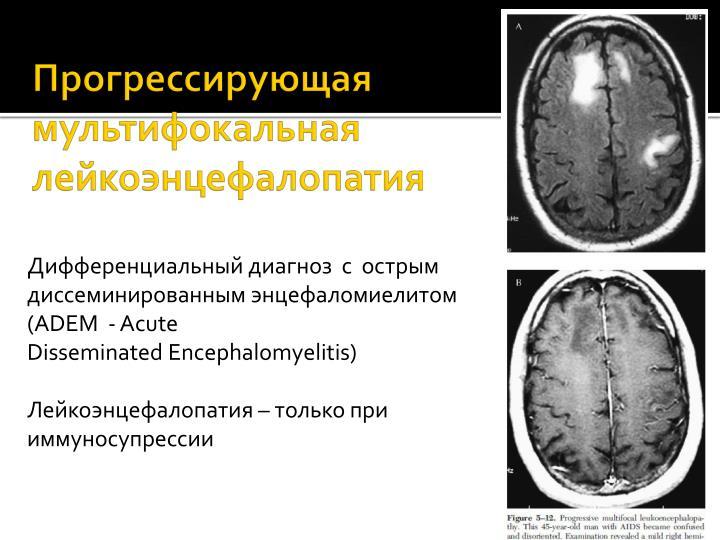 Мр картина сосудистой лейкоэнцефалопатии