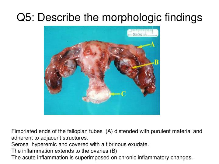 Q5: Describe the morphologic findings