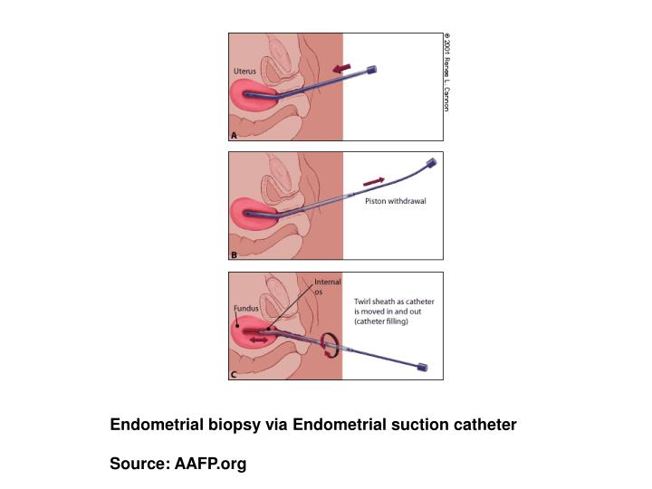 Endometrial biopsy via Endometrial suction catheter