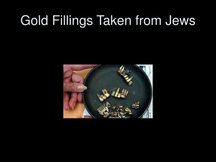 Gold Fillings Taken from Jews