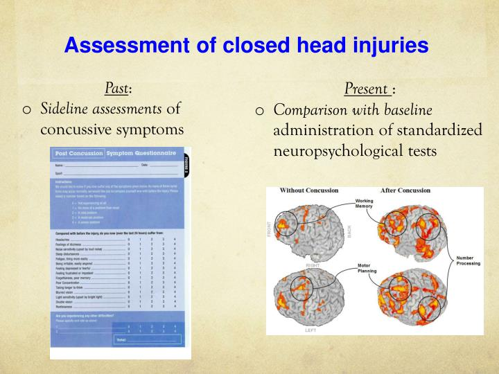 Assessment of closed head injuries