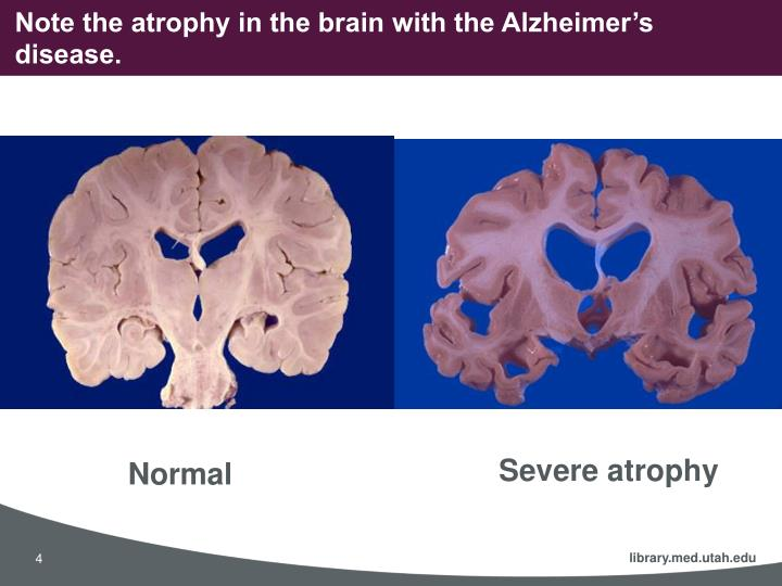 Note the atrophy in the brain with the Alzheimer's disease.