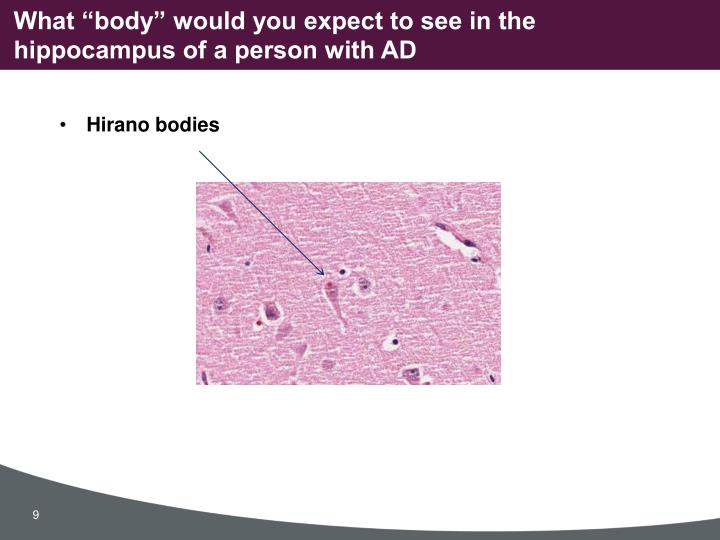 """What """"body"""" would you expect to see in the hippocampus of a person with AD"""
