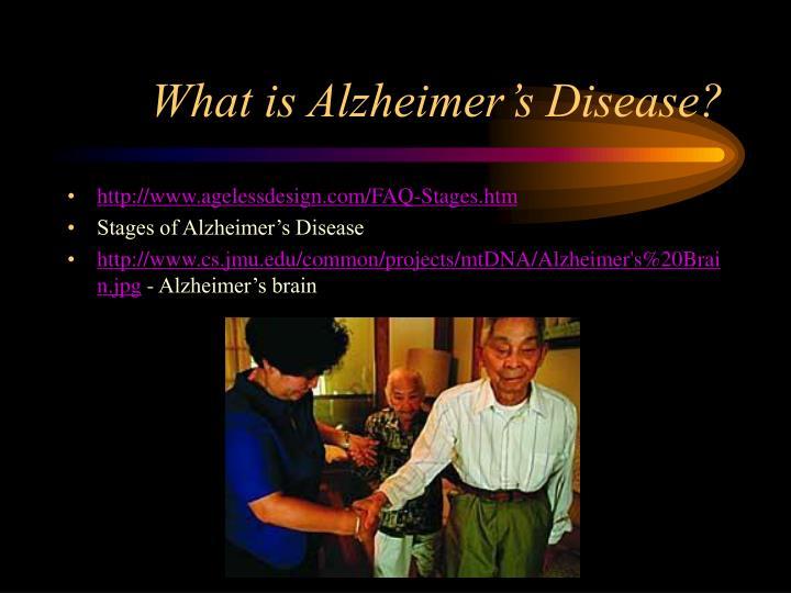 What is alzheimer s disease