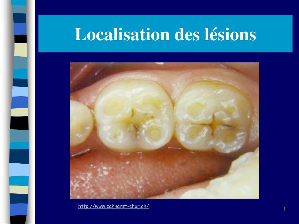 PPT - Érosion dentaire et alimentation PowerPoint ...