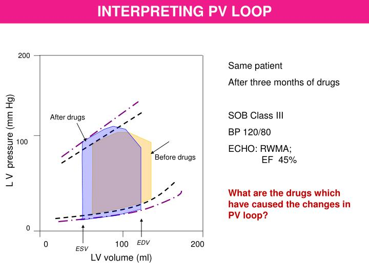 INTERPRETING PV LOOP