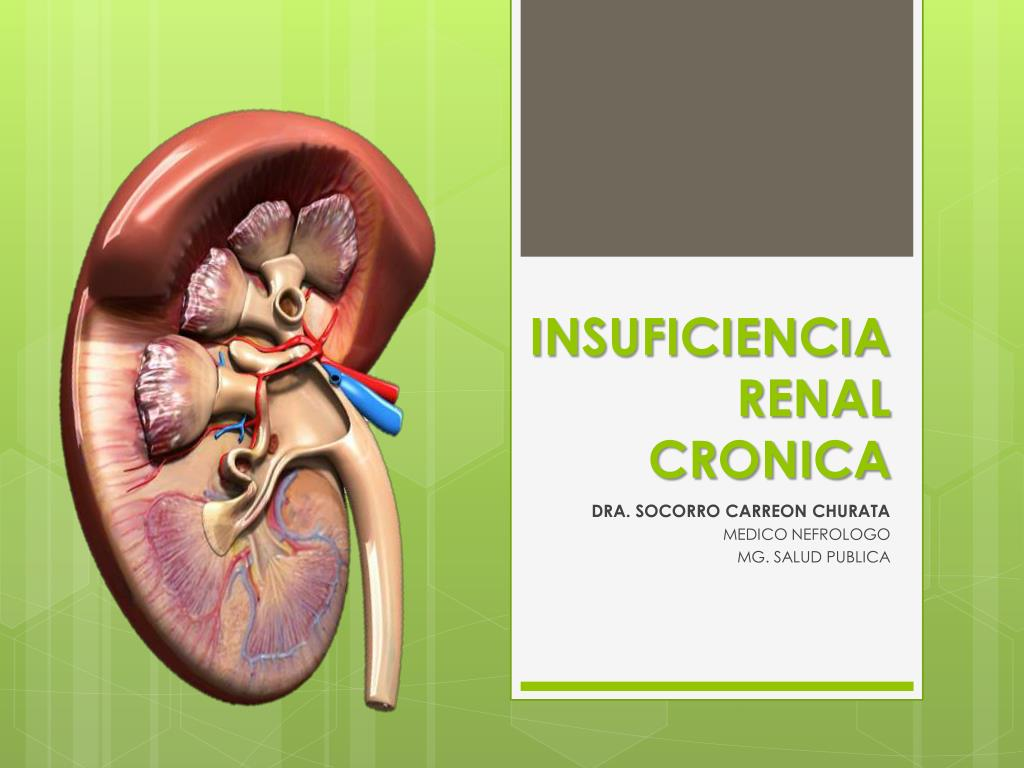 PPT - INSUFICIENCIA RENAL CRONICA PowerPoint Presentation - ID:6274641