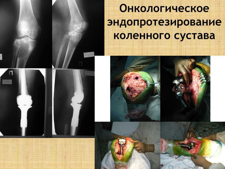 Эндопротезирование коленного сустава саратов
