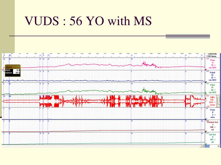 VUDS : 56 YO with MS