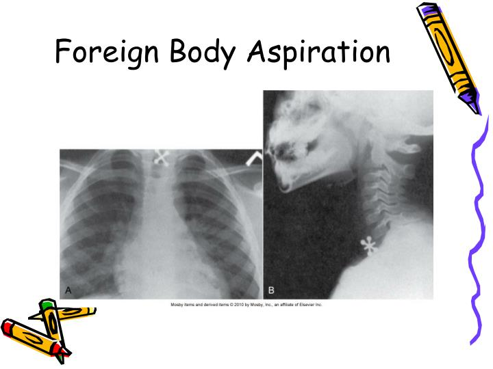 Foreign Body Aspiration