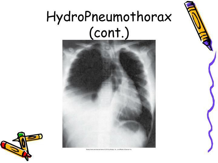 HydroPneumothorax