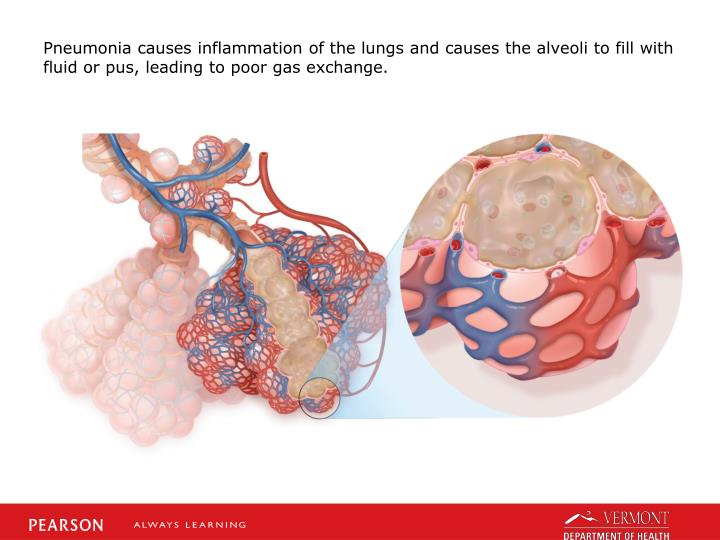 Pneumonia causes inflammation of the lungs and causes the alveoli to fill with fluid or pus, leading to poor gas exchange.
