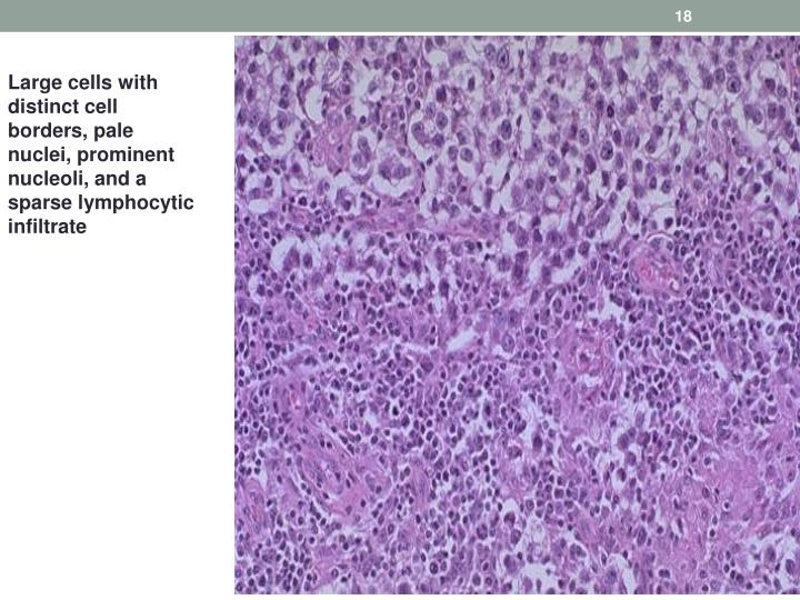 Large cells with distinct cell borders, pale nuclei, prominent nucleoli, and a sparse lymphocytic infiltrate