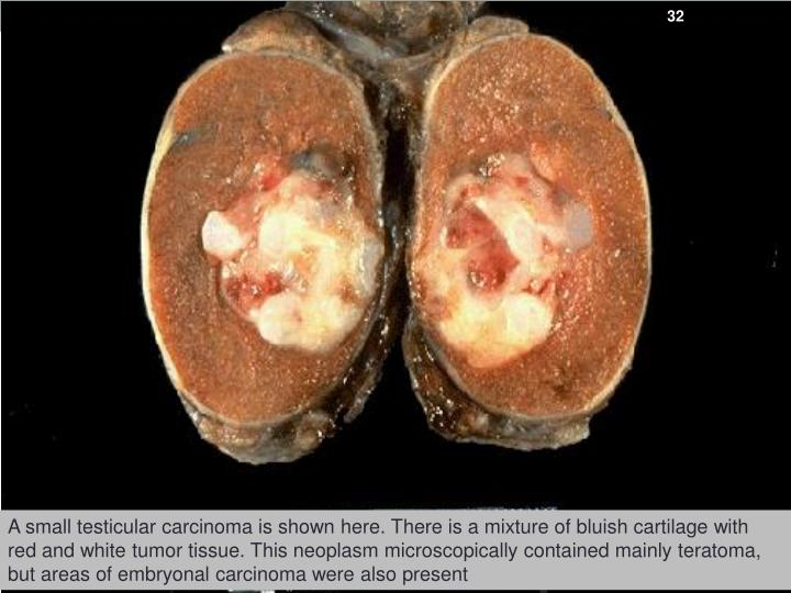 A small testicular carcinoma is shown here. There is a mixture of bluish cartilage with red and white